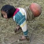Rơi nước mắt ảnh cô bé không có chân đi bằng bóng rổ