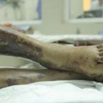 Chàng trai ăn lợn sữa chết bị nhiễm trùng nặng