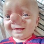 Cậu bé có mũi dài như nhân vật truyện tranh Pinocchio
