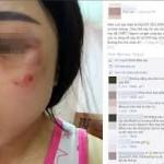Nam thanh niên đánh bạn gái giữa đường bị người đi đường đánh