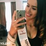 Hoa hậu Úc xinh đẹp đang nguy kịch vì tai nạn xe ô tô